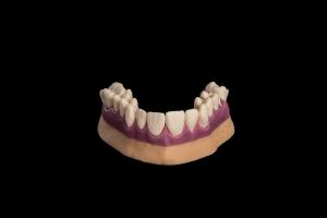 Mâchoire-humaine-créée-par-une-imprimante-3D-de-Prodways